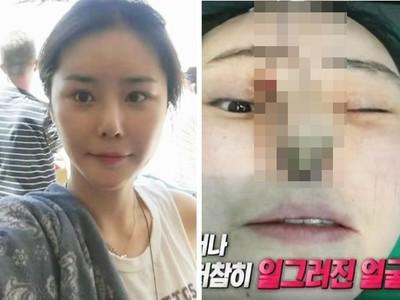鼻腔皮肉掀起流出綠膿!南韓女整鼻失敗還被嗆「去告啊」