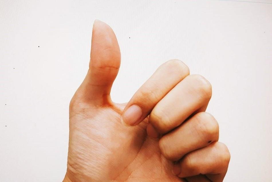 ▲大拇指、手。(圖/記者楊筱柔攝)