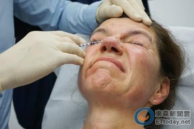 打肉毒桿菌要做出「猙獰臉」? 痛苦表情背後有個秘密