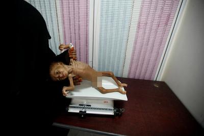 葉門每十分鐘就有一孩童死去