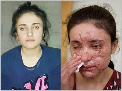 16歲被IS日夜強暴淪性奴,逃到醫院後主任伸出手…再次侵犯她