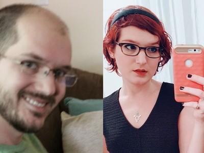 禿男記錄一年來天天吃雌激素變化..頭髮長了,也變女生了
