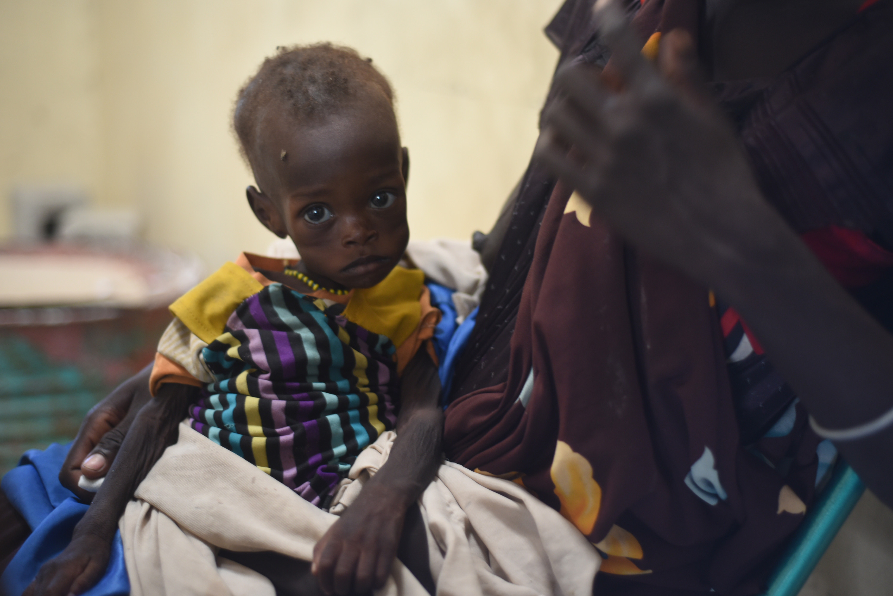 南蘇丹飢荒,south sudan(圖/達志影像/美聯社)