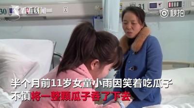 湖南11歲女童笑著嗑瓜子險喪命