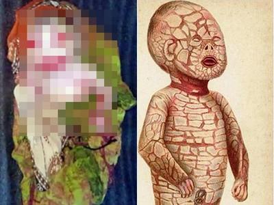 女嬰出生像「川燙肉塊」,印度媽把罕病當詛咒,連餵奶都不想施捨