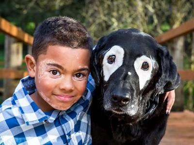 白斑症男童被罵怪物不敢出門 遇見白眼圈狗後,自信露出微笑