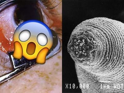 噁爆!這些寄生蟲猛鑽人體孔洞 最愛食物是「你的大腦」