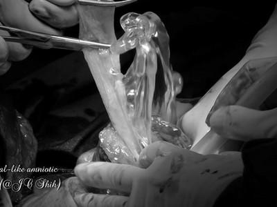 胎兒卡子宮險死,醫生劃刀神救援 「羊水柱狀交織」感動眾人