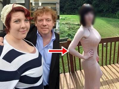 砸錢帶胖女兒整形 富豪爸看她變「男人收割機」覺得光榮!