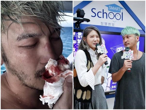 KID鼻子撞斷2次。(圖/翻攝自KID臉書/記者林世文攝)