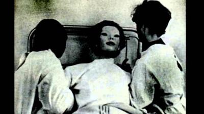 醫院來了「木偶般的女人」…只有一個目擊者活著見證診療過程