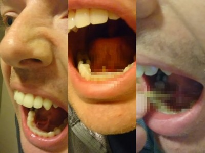 舌下腫腫卡硬物,他嘴巴微張一用力…象牙白垢石緩緩升起