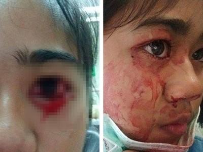 泰國萌妹頭痛發作就七孔流血 醫生:患病機率只有千萬分之一