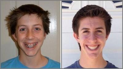 牙套拆除前後對照圖,這就是為何「傾家蕩產」也要去矯正