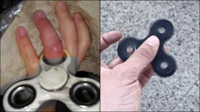 童玩指尖陀螺手卡住變形 反掀網論戰:產品沒錯人有問題