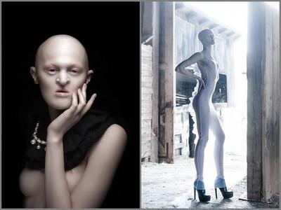 畸形症女飽受欺凌,遇攝影師男友幫拍美照…躋身時尚名模