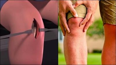 「斷骨增高手術」怎麼做? 83秒動畫看完膝蓋痠整天