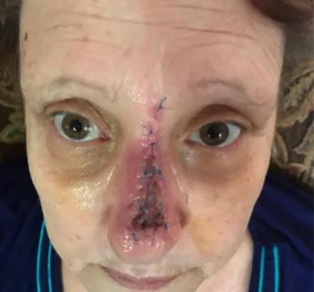 「防曬沒有很重要」上一個這麼說的人 鼻子已經罹癌切掉了(圖/取自BuzzFeed網站)