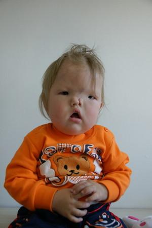 ▲罹患先天顱顏缺縫罕見疾病的蒙古兒童桑賈來台重建(圖/羅慧夫顱顏基金會提供)
