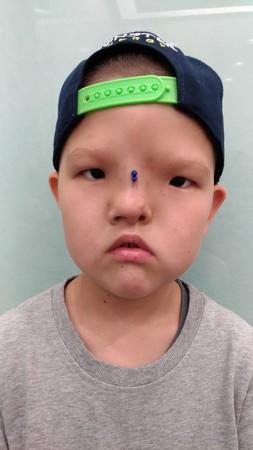 ▲罹患先天顱顏缺縫罕見疾病的蒙古兒童桑賈來台重建,圖為手術後。(圖/羅慧夫顱顏基金會提供)