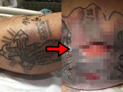 剛刺青就下海戲水 31歲男皮膚「潰爛起膿泡」醫生救不回
