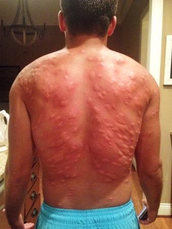 讓「蚊子包」瞬間解癢的5個偏方 被慘叮腫成玉米棒也不怕。(圖/一次用示意圖)