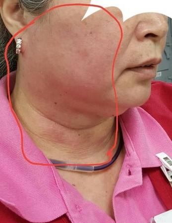 ▲洪姓女店員被奧客打巴掌,造成臉部紅腫挫傷。(圖/翻攝自《靠北奧客》粉絲專頁)