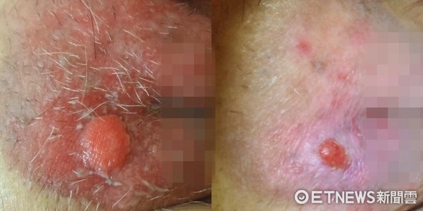 ▲外陰部1公分「大痘痘」腫痛又滲血 切片檢查竟是癌!。(圖/台北慈濟醫院提供)