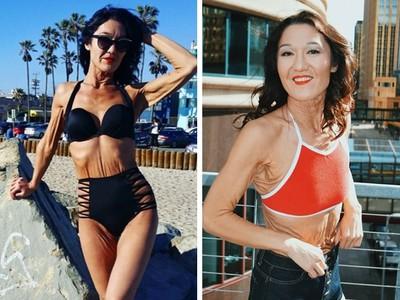 換件衣服皮開肉綻!26歲女患「皺皮症」勇敢成為時尚辣模