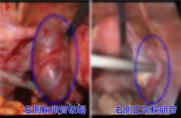 亂吃事後避孕丸,造成輸卵管破裂出血休克。(圖/亞大醫院提供)
