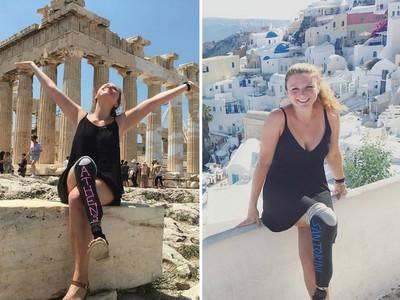 穿「黑板漆義肢」遊歐洲,她的燦爛笑容比美景更耀眼