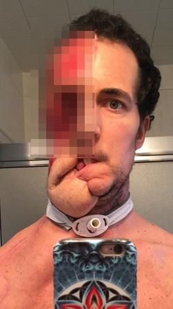▲▼腫瘤破口而出!陽光男動刀削半張臉 名醫重建後...他笑了。(圖/翻攝Tim McGrath的臉書)