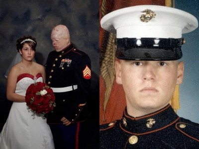 女友嫁給毀容士兵「全程沒笑容」 婚姻只撐一年就散伙