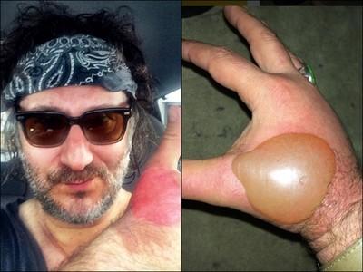 陽光下擠萊姆 害他手背冒出「雞蛋大水泡」