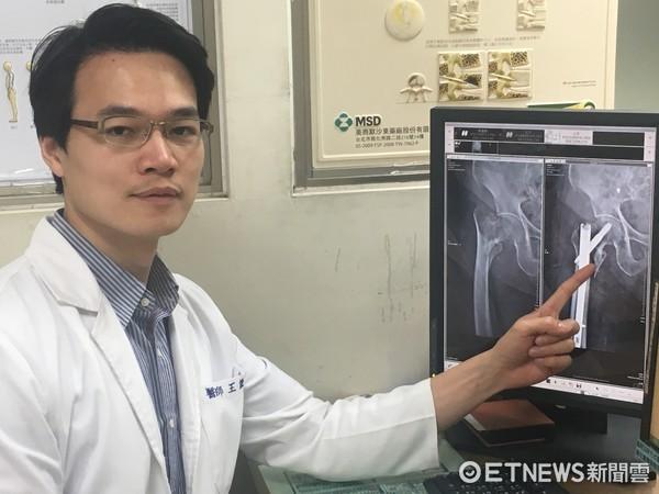 ▲人瑞阿嬤摔倒骨折,經醫師檢查後確診為右側股骨粗隆間移位閉鎖性骨折。(圖/衛生福利部南投醫院提供)