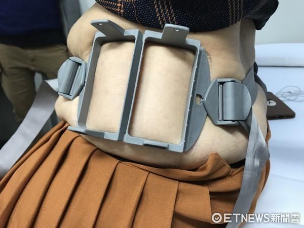 溶脂有又新技術了!日本現今有一款相當夯的「低溫雷射體外溶脂」。(圖/記者趙于婷攝)