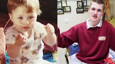 出生得絕症「睡著就死」 醫稱活不過6個月 如今他喜慶18歲生日