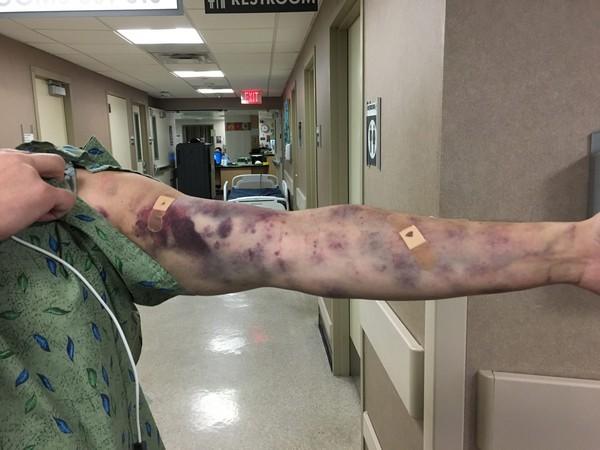 ▲傑依被蟲子叮咬後,整條手臂佈滿瘀青。(圖/翻攝自臉書/Dee Petrov )