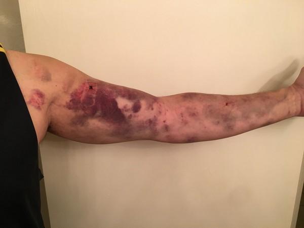 ▲傑依被蟲子叮咬後,整條手臂佈滿瘀青         。(圖/翻攝自臉書/Dee Petrov )