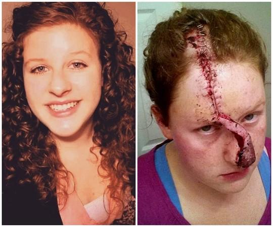 ▲對抗皮膚癌手術的馬里莎,每天紀錄治療過程 。(影片/翻攝自YouTube/Marisha Dotson))