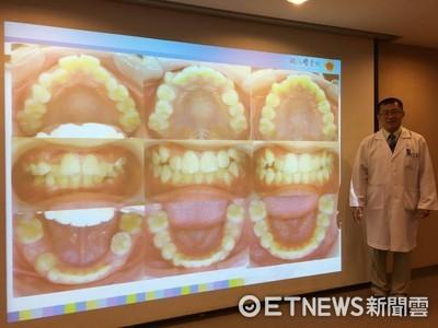 矯正牙齒要等到「長恆齒」? 醫說7歲開始最恰當!