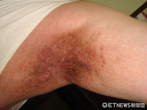 ▲不當使用痱子粉致腋下濕疹。(圖/皮膚科醫師趙昭明提供)