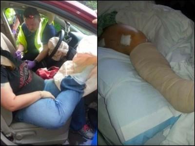 人妻翹腳坐副駕 撞車瞬間氣囊彈出「腿被折兩半」