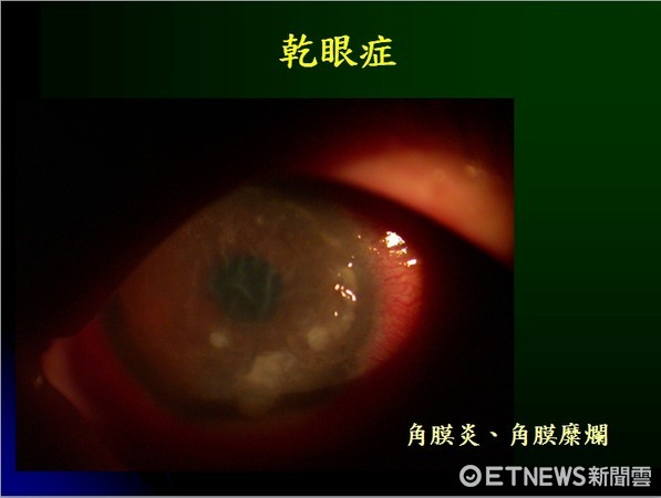 ▲乾眼症。(圖/陳瑩山醫師提供)