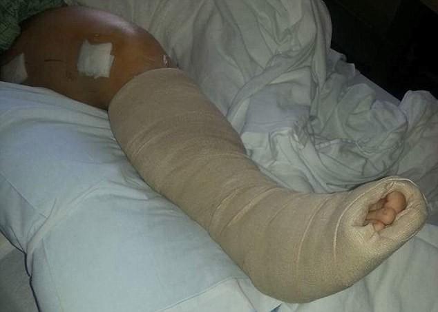 ▲33歲母親把腳放在控制台上,發生車禍後造成嚴重骨折。(圖/翻攝自Twitter)