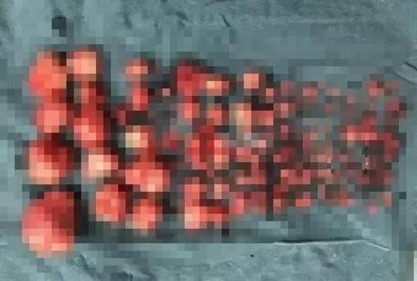 浙江省台州市一名29歲王姓女子因長了110多顆子宮肌瘤,導致經期過量,重度貧血。(圖/翻攝《浙青網》)