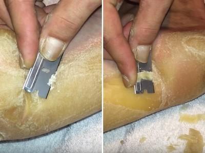 噁!「十年腳皮盔甲」一刀切下,這畫面是削馬鈴薯要炸啊..