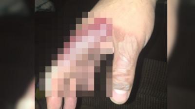老公手掌燙出「超尷尬烙印」  老婆笑瘋:握到龜懶趴火?