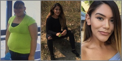 胖到沒朋友!101kg女發狠減肥,2年甩肉36kg…長出「網紅臉」