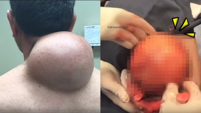 中秋節「後頸自備文旦」  找醫生採收...整顆脂肪瘤帶汁炸出